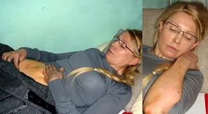 Появились красноречивые фотографии гематом и синяков Тимошенко