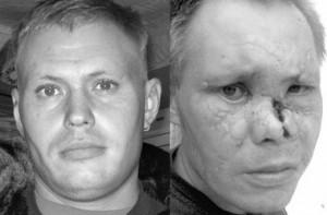 Артема избили за то, что он распивал спиртные напитки в общественном месте. Фото: gazeta.ua