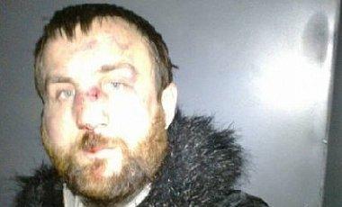 Марьян Гаврилив после избиения. Фото: sprotiv.org